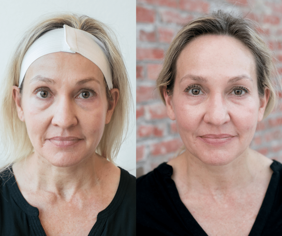 kybella befor and after