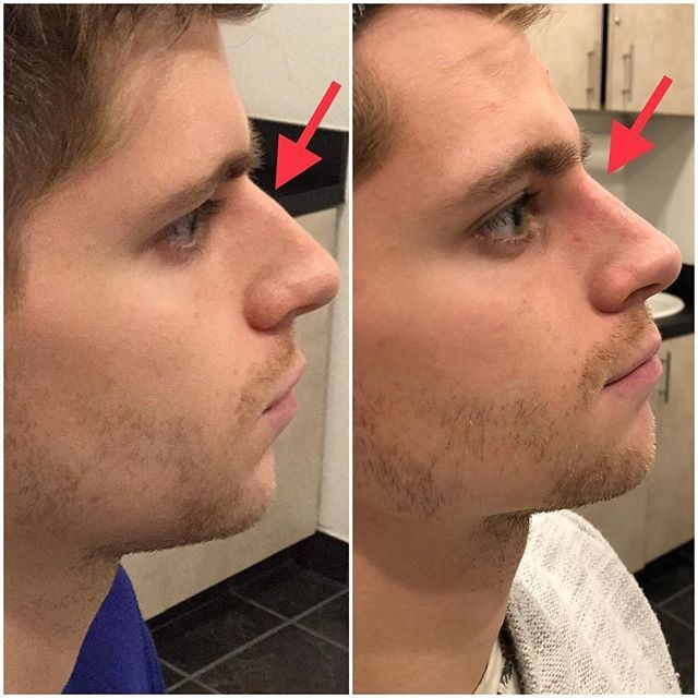 reshape your nose